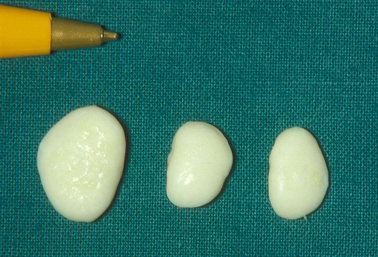 Loose bodies after removal from the knee joint.