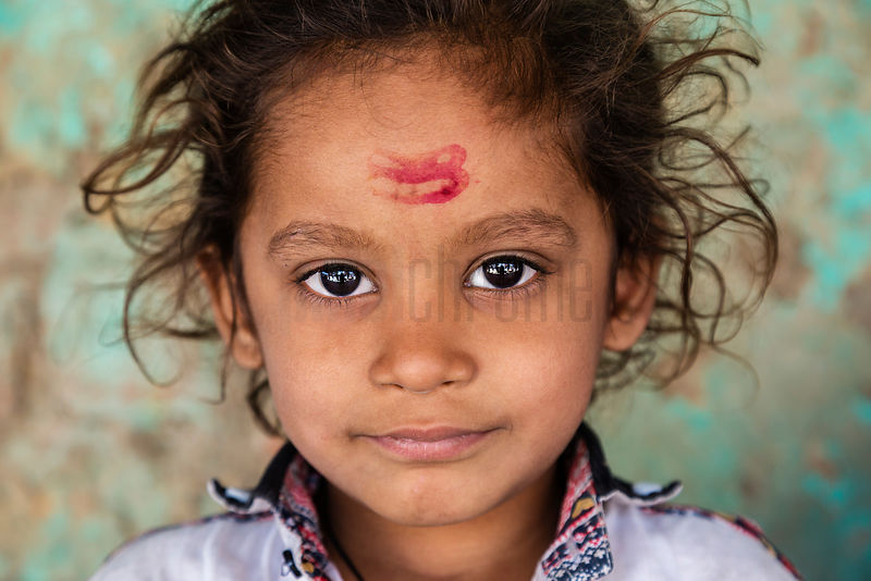 Portrait of Child with a Red Mark on her Forehead