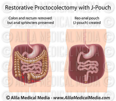 Restorative proctocolectomy with J-pouch