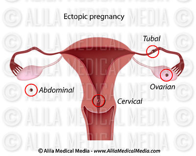 Ectopic pregnancies (sites of)
