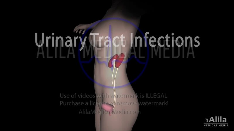 Urinary Tract Infection NARRATED Animation