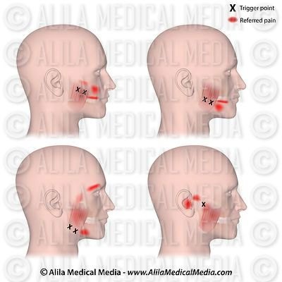 Trigger points and referred pain of the masseters