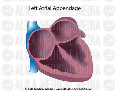 Left atrial appendage unlabeled
