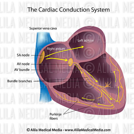 Alila Medical Media   Electrical pathways of the heart ...