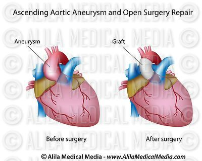 Ascending aortic aneurysm and open surgery