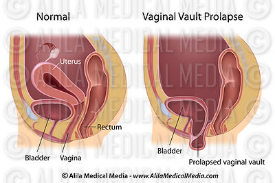 Alila Medical Media | Vaginal vault prolapse unlabeled ...