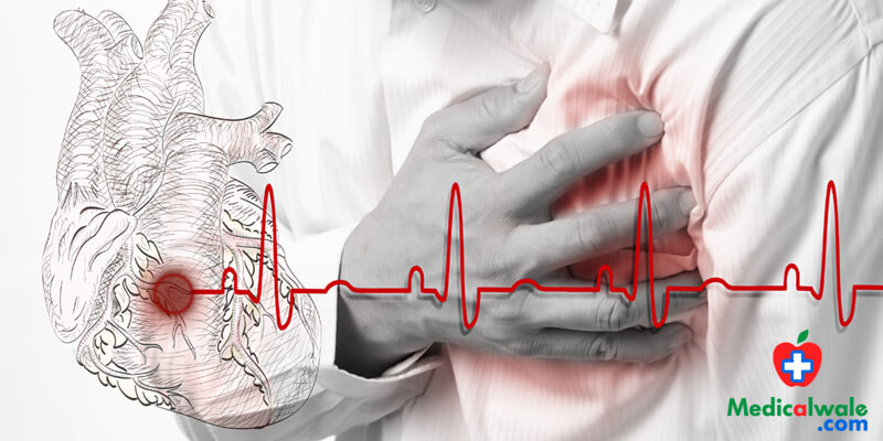 Home Remedies for Chest Pain-Angina