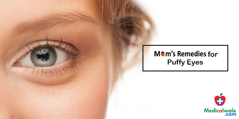 Moms Remedies for Puffy Eyes