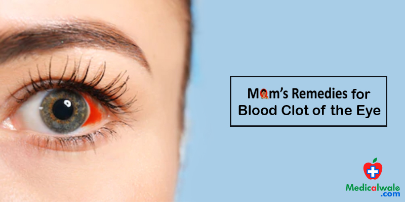 Moms Remedies for Blood Clot of the Eye