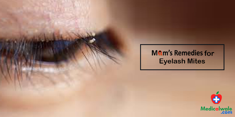 Moms Remedies for Eyelash Mites