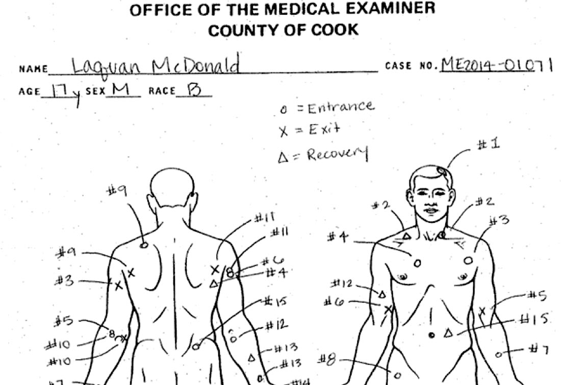 Wounds found on Laquan McDonald's body