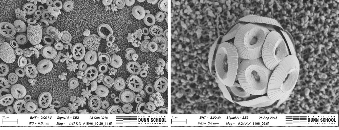 Sediment that contains the fossilized remains of coccolithophores (on the left) and a modern day coccolithophore that was grown in a lab (on the right).