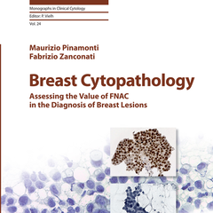 Breast Cytopathology: Assessing the Value of FNAC in the Diagnosis of Breast Lesions