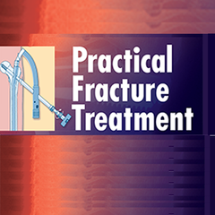 Practical Fracture Treatment, Fifth Edition