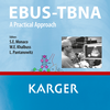 EBUS-TBNA: A Practical Approach