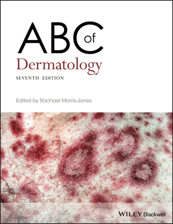 ABC of Dermatology- a medical textbook in Indextra
