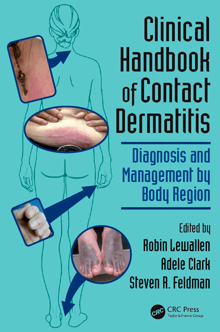 Clinical Handbook of Contact Dermatitis: Diagnosis and Management by Body Region