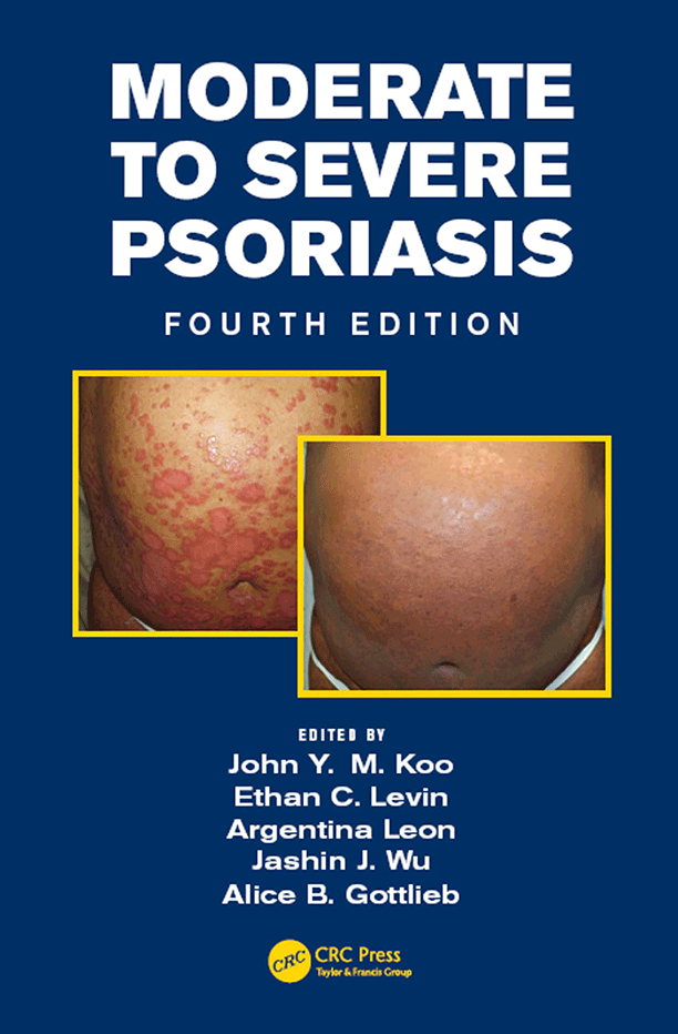 Moderate to Severe Psoriasis