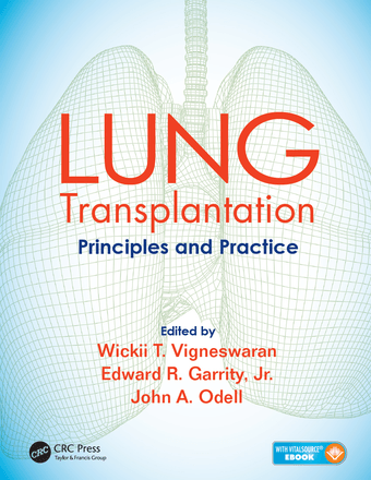 LUNG Transplantation Principles and Practice