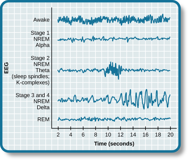 """A graph has a y-axis labeled """"EEG"""" and an x-axis labeled """"time (seconds.) Plotted along the y-axis and moving upward are the stages of sleep. First is REM, followed by Stage 3 and 4 NREM Delta, Stage 2 NREM Theta (sleep spindles; K-complexes), Stage 1 NREM Alpha, and Awake. Charted on the x axis is Time in seconds from 2–20 in 2 second intervals. Each sleep stage has associated wavelengths of varying amplitude and frequency. Relative to the others, """"awake"""" has a very close wavelength and a medium amplitude. Stage 1 is characterized by a generally uniform wavelength and a relatively low amplitude which doubles and quickly reverts to normal every 2 seconds. Stage 2 is comprised of a similar wavelength as stage 1. It introduces the K-complex from seconds 10 through 12 which is a short burst of doubled or tripled amplitude and decreased wavelength. Stages 3 and 4 have a more uniform wave with gradually increasing amplitude. Finally, REM sleep looks much like stage 2 without the K-complex."""