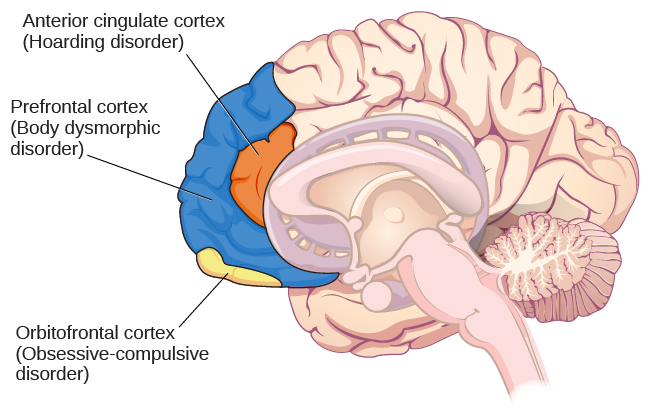 An illustration of the brain identifies the location of three areas and their associated disorders: the anterior cingulate cortex (hoarding disorder), the prefrontal cortex (body dysmorphic disorder), and the orbitofrontal cortex (obsessive-compulsive disorder).