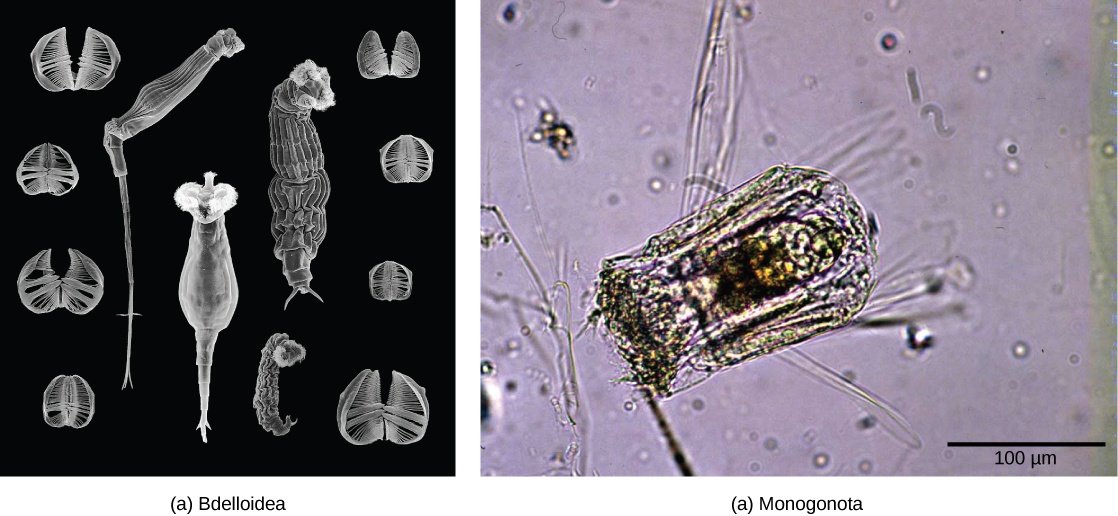 Scanning electron micrograph A shows rotifers from the class Bdelloidea, which have a long, tube-shaped body with a fringe surrounding the mouth. Light micrograph B shows that Polyarthra from the class Monogononta is shorter and wider than the bdelloid rotifers, with a smaller fringe.