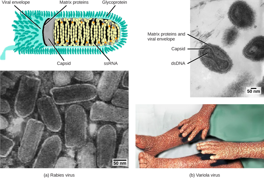 Part a (top) is an illustration of the rabies virus, which is bullet-shaped. RNA is coiled inside a capsid, which is encased in a matrix protein-lined viral envelope studded with glycoproteins. Part a (bottom) is a micrograph of a cluster of bullet-shaped rabies viruses. Part b (top) is a micrograph of variola virus, which has DNA encased in a bow-shaped capsid. An oval matrix protein-lined envelope surrounds the capsid. Part b (bottom) shows irregular, bumpy lesions on the arms and legs of a person with smallpox.