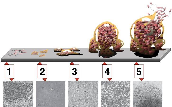 During the first stage of biofilm development, a few bacteria adhere to a surface. During stage 2, the bacteria grow hairy appendages called pili. During stage 3, the microfilm grows into lumpy colonies. In stage 4, the microfilm grows into a more ball-like shape that is anchored to the surface by a smaller clump of bacteria. In stage 5, the ball of bacteria is larger, and bacteria with flagella swim away.