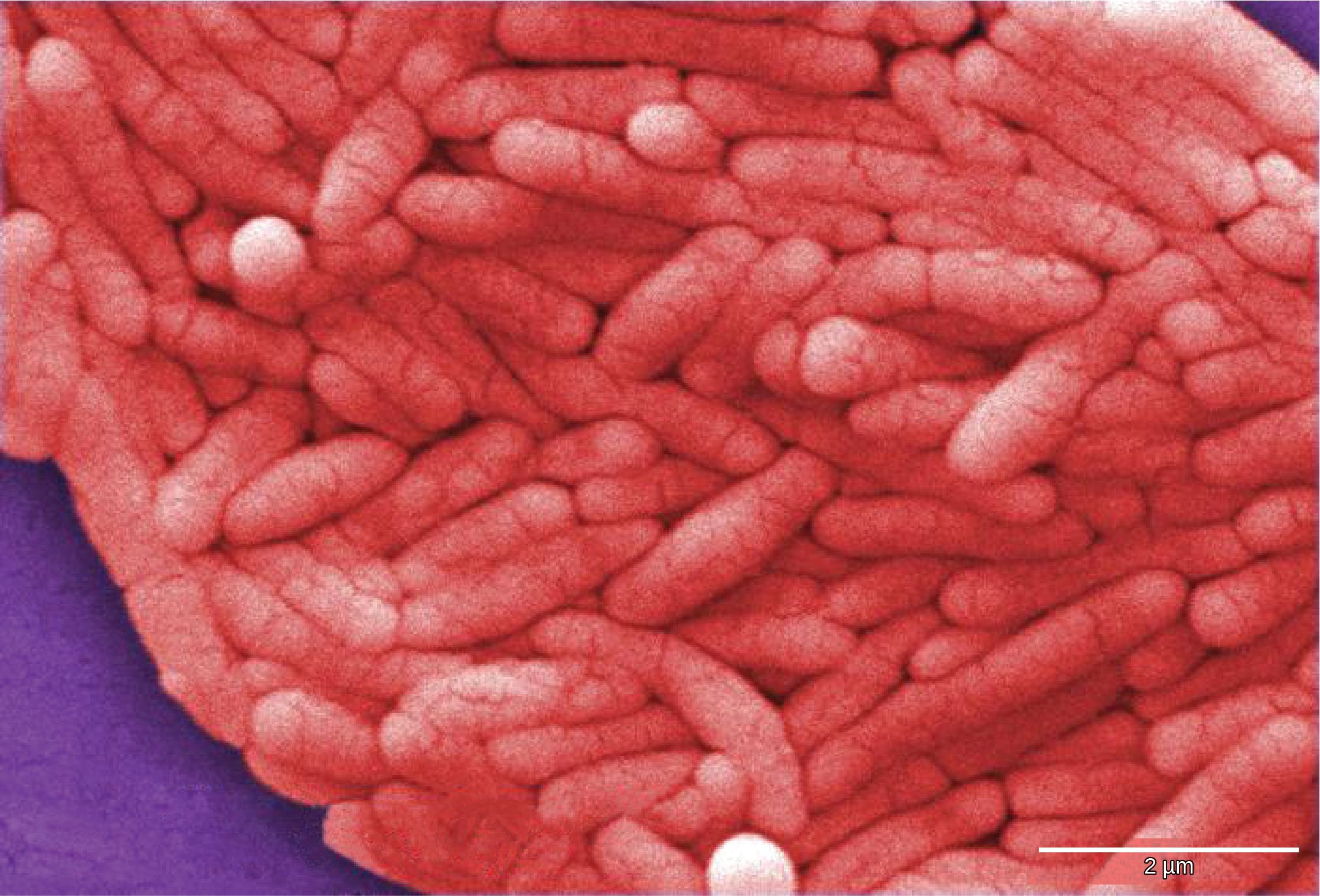 Micrograph shows pink rod-shaped bacteria.