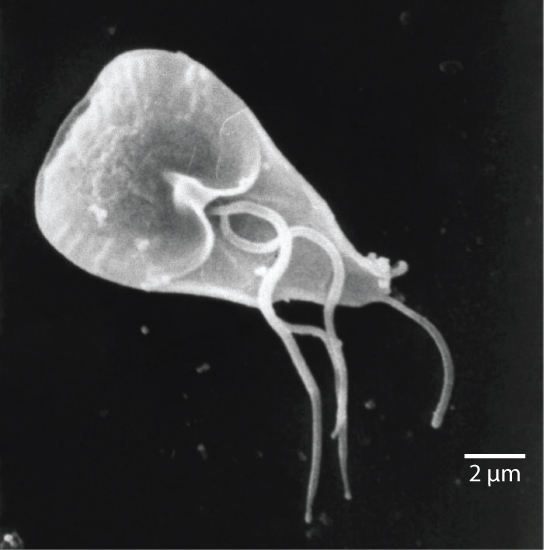 The micrograph shows Giardia, which is shaped like a corn kernel and about 12 to 15 microns in length. Three whip-like flagella protrude from the middle of the parasite, and a whip-like tail protrudes from the narrow back end.