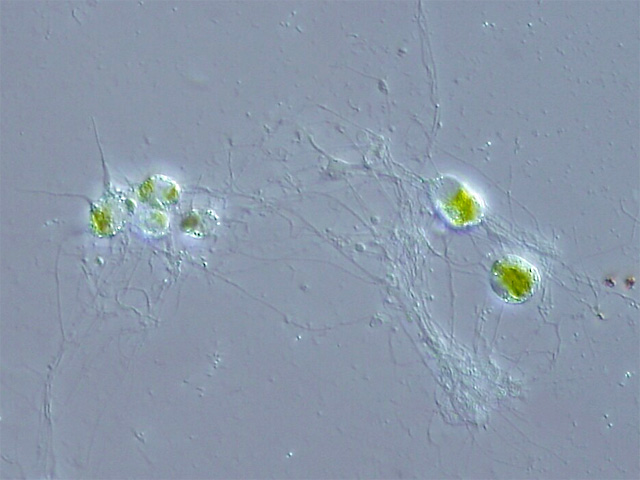 Image is a Chlorarachniophyte. It appears as a series of green cells with what appear to be fibers surrounding and connecting them.