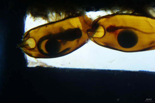 The photo shows long, thin shark embryos encase in egg cases.