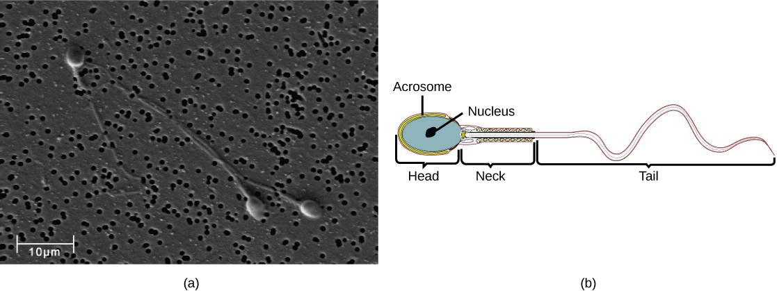 Micrograph shows human sperm, which have an oval head about 3 microns across and a very long flagellum. Illustration shows that the head is surrounded by the acrosome. The part of the tail closest to the head, called the neck, is thicker than the rest.