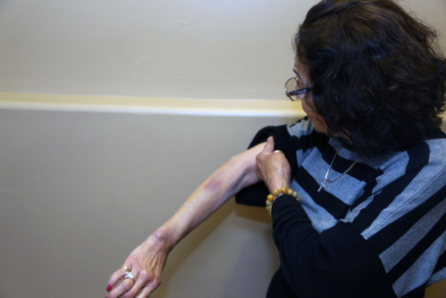 Her arm was also bruised. Photo by George Lipp.