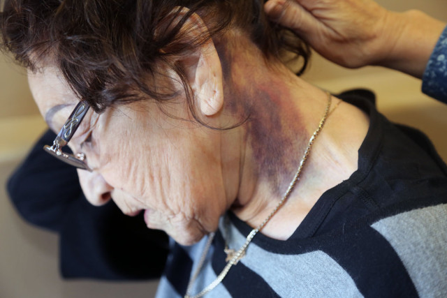 79-Year-Old Woman Says Officer Pushed Her