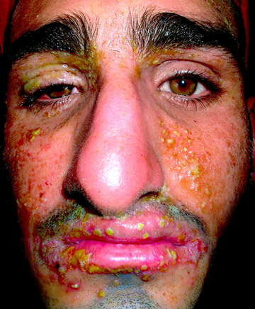 The history of jungle exploration is abundant with accounts of men dying from infection. In 2007 an infection, spread rapidly by dozens of open wound mosquito bites (and subsequent scratching), almost killed Rosolie. He was stuck in the forest, while days passed and his fever rose, and not a boat passed by. Photo courtesy of Paul Rosolie.
