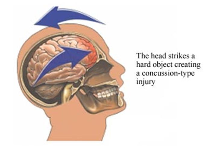 Image: Can a Mouthguard Prevent Concussions?