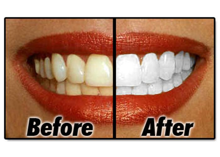 Image: At Home Whitening Compared to Dentist Whitening