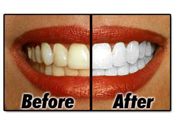 At Home Whitening Compared to Dentist Whitening