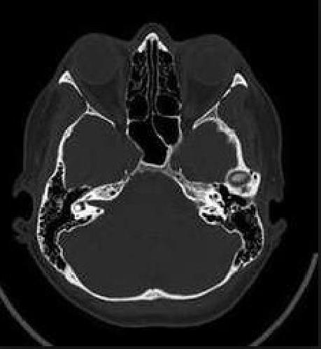 Компьютерная томография пазух носа в СПб