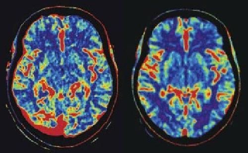 Функциональное МРТ головного мозга