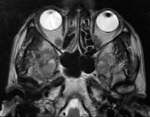 Томография глаза