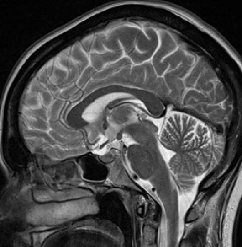 МРТ головного мозга что покажет
