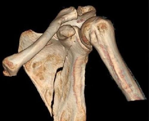 КТ костей