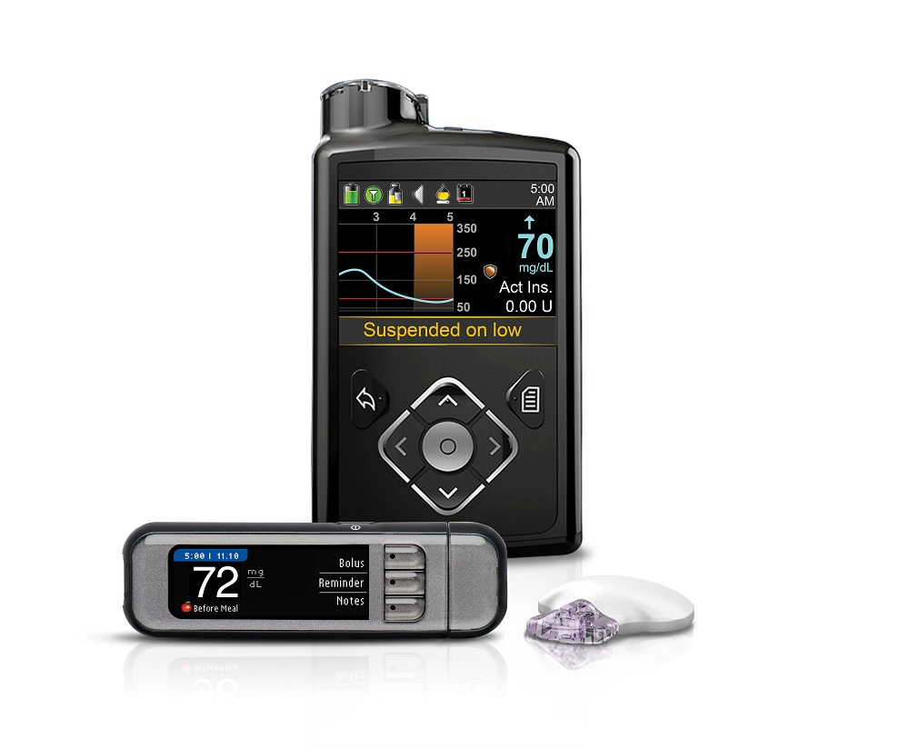 MiniMed® 630G Insulin Pump with Enlite Sensor – Black