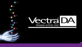Vectra® DA