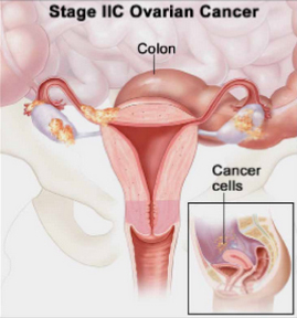 Ovarian Cancer Stage IIB