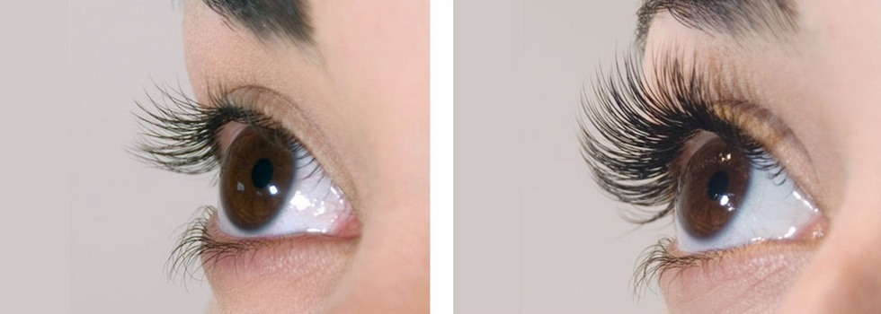 Md Cosmedika New York Ny Eyelash Extensions Book Online