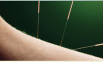 BnA Acupuncture Clinic: Acupuncture
