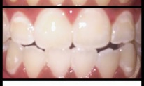 Diamond Smile Whitening: Teeth Whitening
